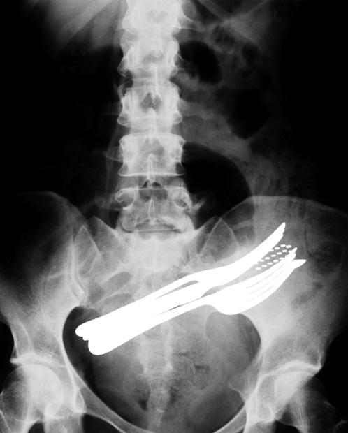 vreemde-rongtenfotos-xray-bestek-vork