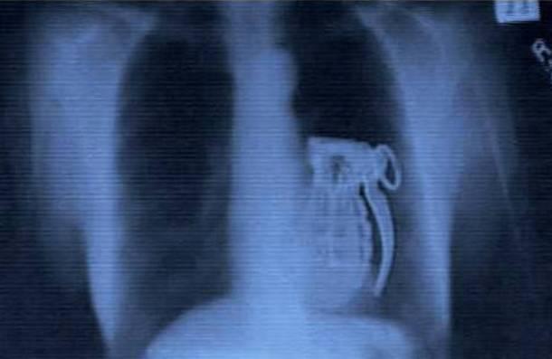 vreemde-rongtenfotos-xray-granaat-zelfmoord